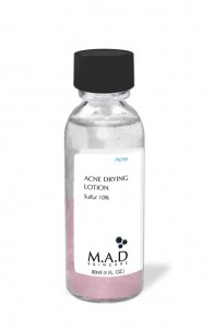 Acne-Drying-Lotion-Sulfur